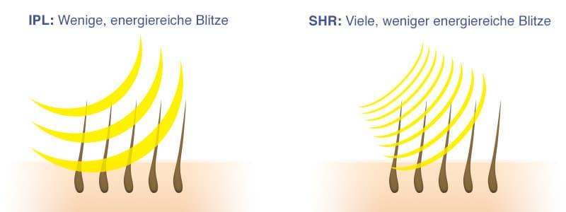 Schaubild zum Unterschieb SHR/IPL